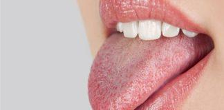 sindrome della bocca urente